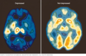 Brain Scan of Depressed Person
